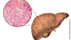 Image: graphic showing a human liver and an enlarged picture of liver cells; Copyright: panthermedia.net/katerynakon