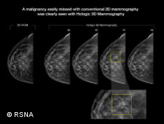 Photo: 3-D mammography