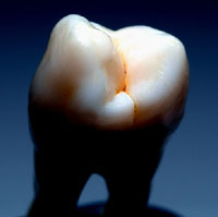 Photo: A tooth