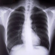 Photo: x-ray of the lung