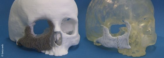 Image: Two skull models with 3D printed implants; Copyright: beta-web