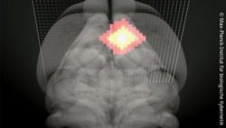 Photo: Brainscan; Copyright: Max Planck Institute for Biological Cybernetics