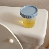Photo: A flask with urine in the bathroom