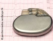 Photo: pacemaker