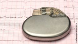 Image: cardiac pacemaker placed upon an electrocardiogram; Copyright: panthermedia/bdspn74