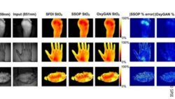 Image: hand and foot  in different pictures ; Copyright: SPIE