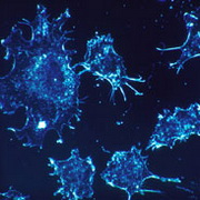 photo: cancer cells