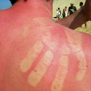 Photo: Sunburned skin