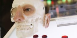 Image: Skull with implants for eye, nose and ear; Copyright: Messe Düsseldorf/C.Tillmann