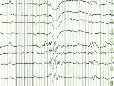 Photo: EEG curve