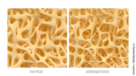 Picture: Graphic of a healthy and a diseased bone; Copyright: PantherMedia / eranicle
