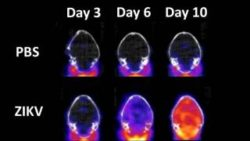 Image: representative PET/CT mouse brain images at days 3, 6 and 10 post-infection with Zika virus; Copyright: US Army Medical Research Institute of Infectious Diseases
