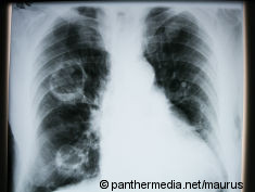 Photo: X-ray image shows cancer in lung