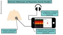 Graphic: Electronic stethoscope records patient's breathing