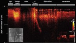 Image: Two-dimensional all-optical ultrasound imaging (B-Mode) acquired during the manual translation of the needle tip across a distance of 4 cm; Copyright: University College London