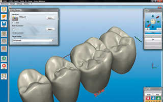 3D-measurement readout for a dentist (Source: Sirona Dental Systems GmbH)