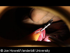 Photo: Demonstration of magnetic retractor lifting a liver