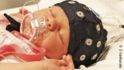 Image: A newborn under EEG monitoring; Copyright: S Vanhatalo