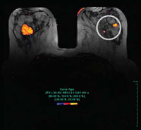 Photo: Computer Enhanced Breast MRI